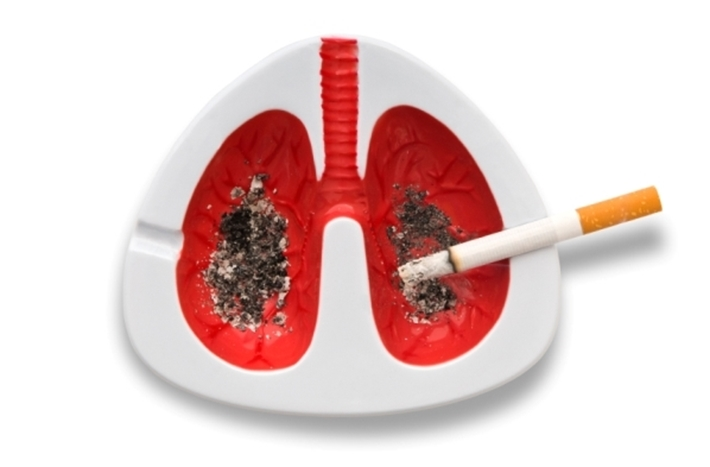 Lung cancer - symptoms and prevention