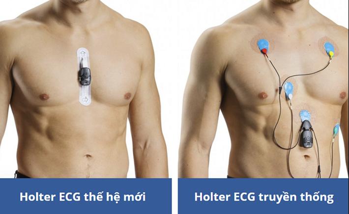 ECG là gì? Những ưu điểm tuyệt vời của Holter ECG thế hệ mới