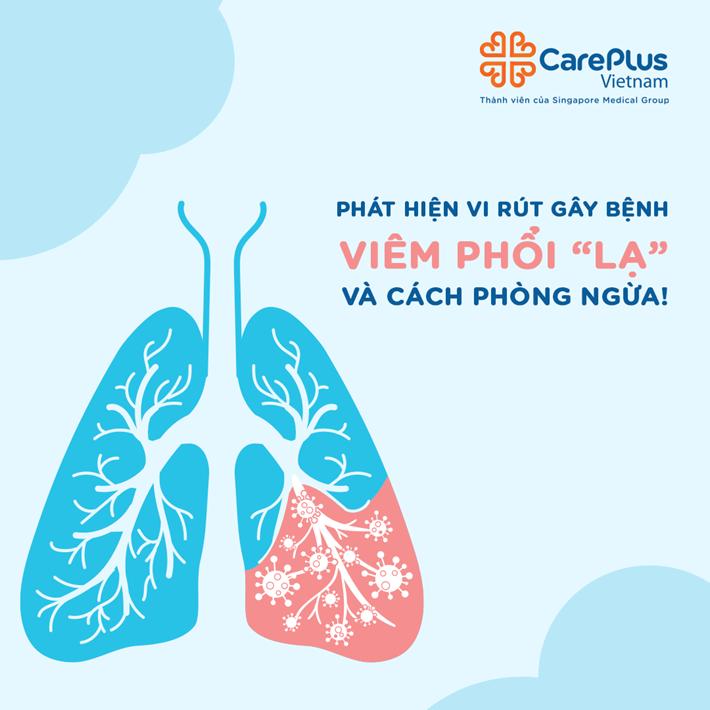 Cách phòng ngừa viêm phổi Virus Corona