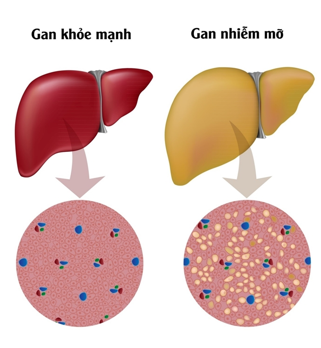 Gan nhiễm mỡ: dấu hiệu nhận biết sớm nhất và cách điều trị