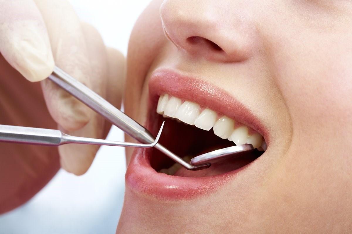 tẩy trắng răng có hại không
